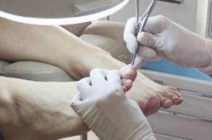 Лечение ногтя