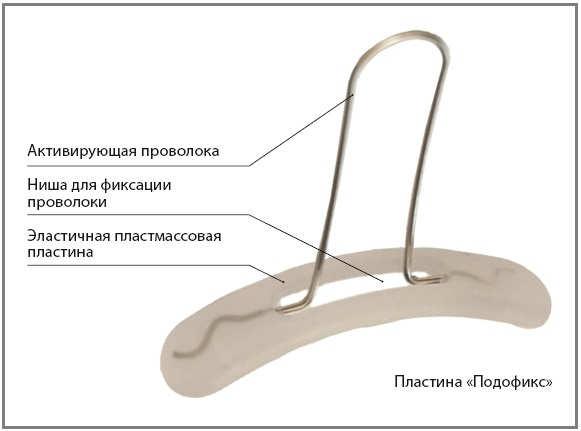 Скоба PODOfix