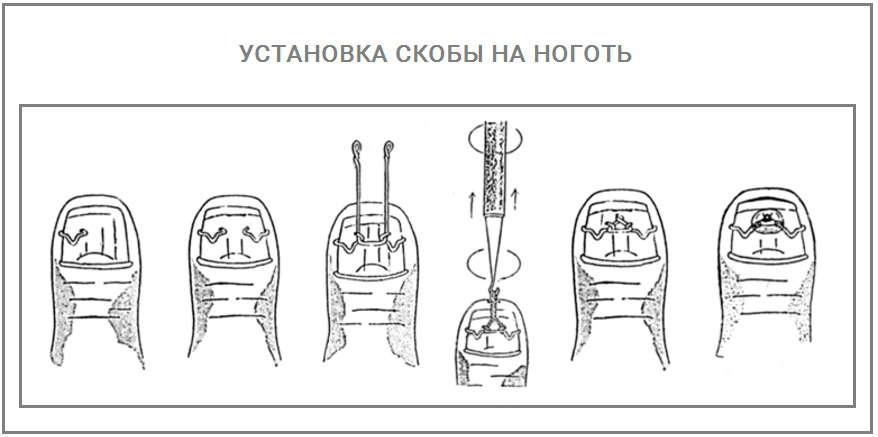 Установка скобы на ноготь