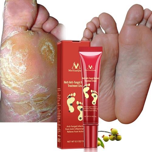 На столе стоит флакон и упаковка крема от микоза ног ногтей видны стопы пораженные грибковой инфекцией и уже здоровые ноги