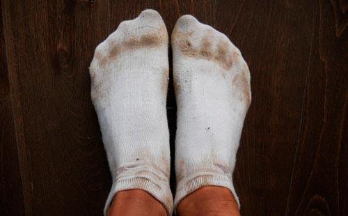 Как и чем эффективно отстирать белые носки?