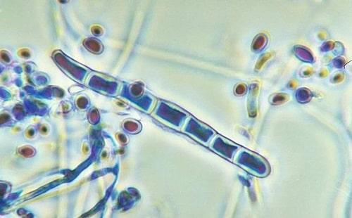 Споры микоза стоп под микроскопом